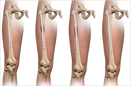 Limb Lengthening and Reconstruction